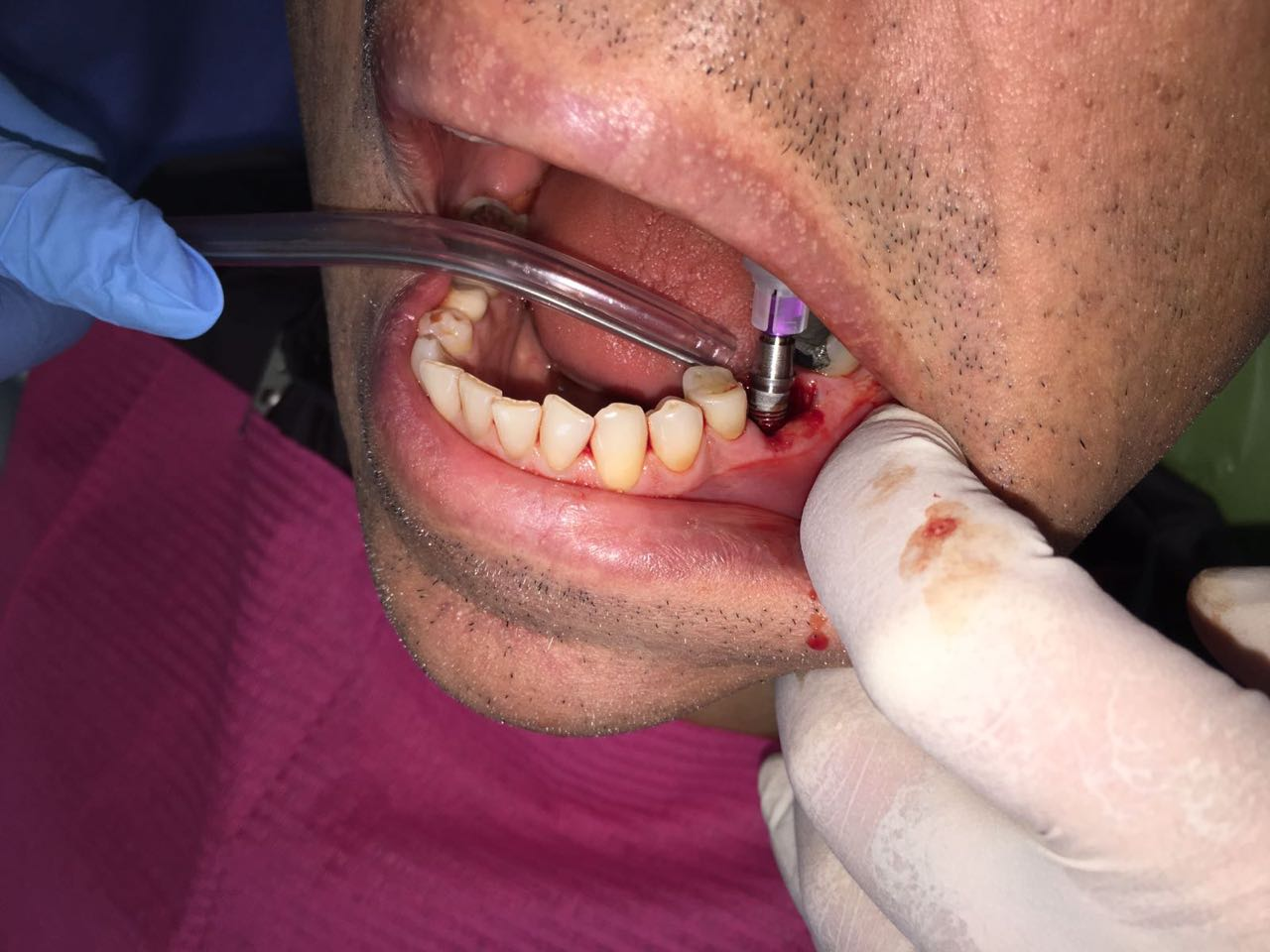 Immediate implant Post Extraction